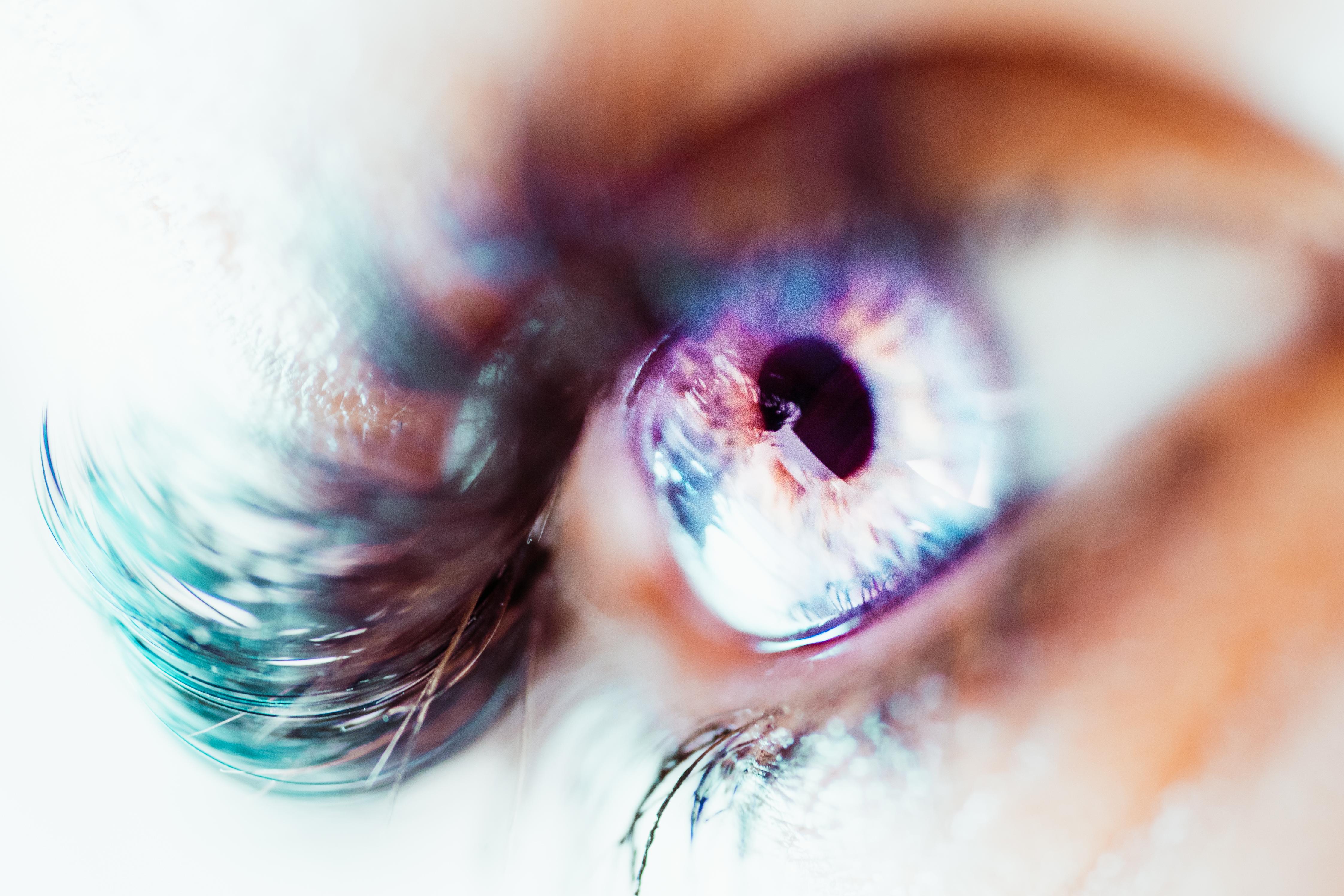 derrame ocular causas y consecuencias